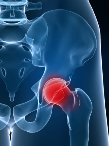 Hip Bursitis Treatment